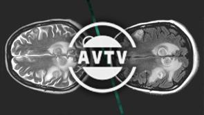 AVTV - Le changement d'heure
