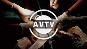 AVTV - Le don d'organes