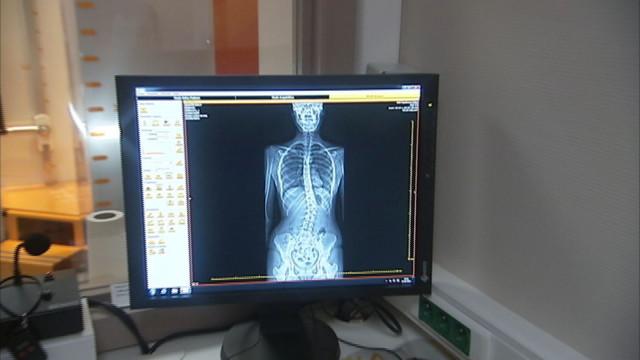 Osimis, spin-off du CHU, révolutionne l'imagerie médicale