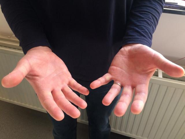 Préserver ses mains face à la crise du Covid-19